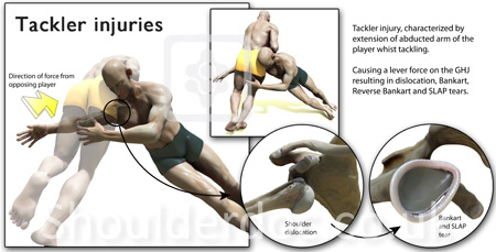 Rugby Shoulder Injuries Labral Tears Grumbling Ac