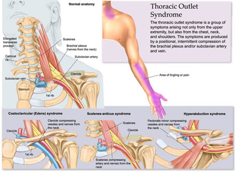 Thoracic Outlet Syndrome Brace